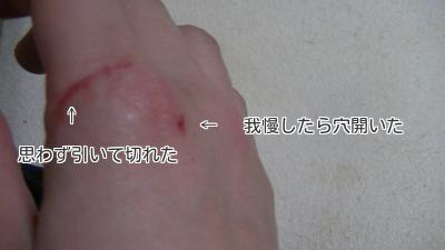 ハヤテに噛まれた手